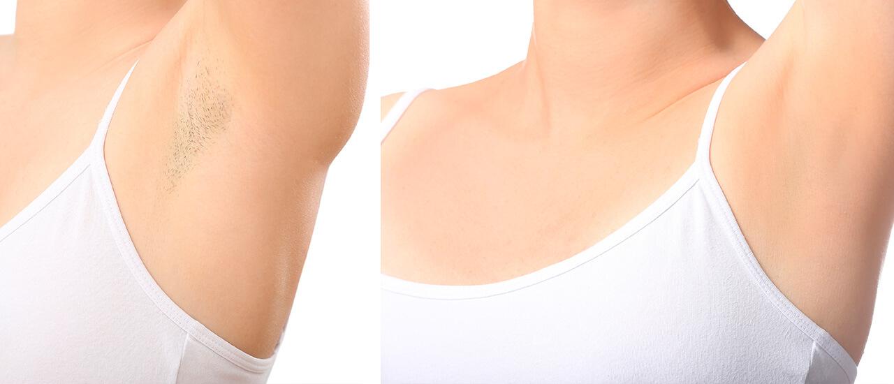 Resultados depilación láser mujeres axilas