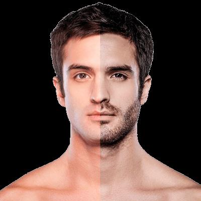 Precio depilación laser barba