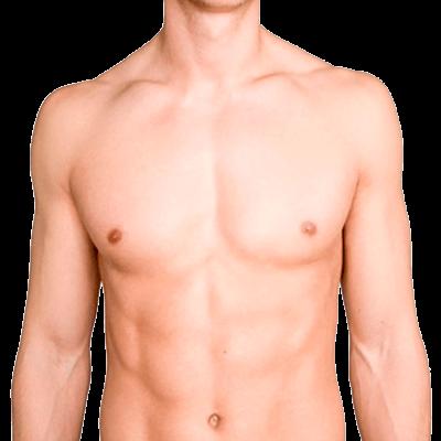 Depilación láser Bogotá abdomen